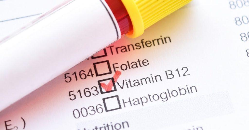 vitamin b12 injection edinburgh